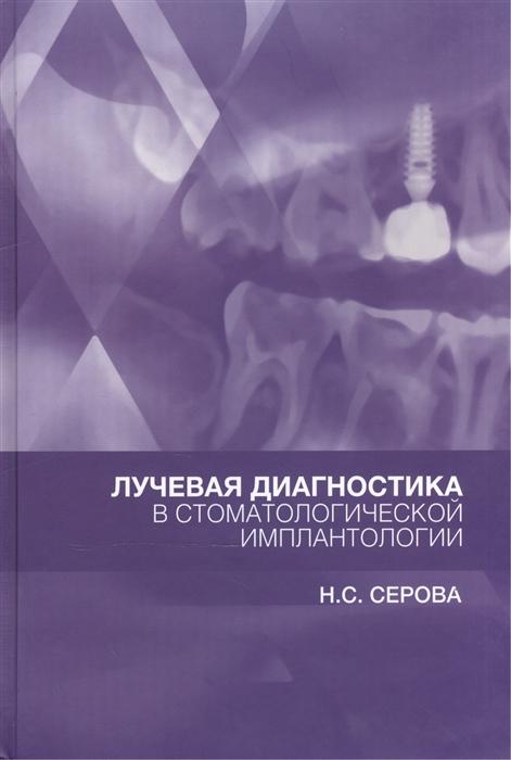 Серова Н. Лучевая диагностика в стоматологической имплантологии