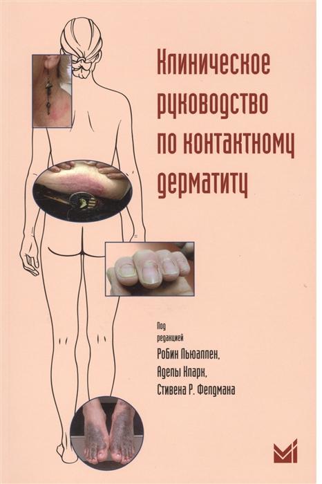 Клиническое руководство по контактному дерматиту Диагностика и лечение в зависимости от области поражения