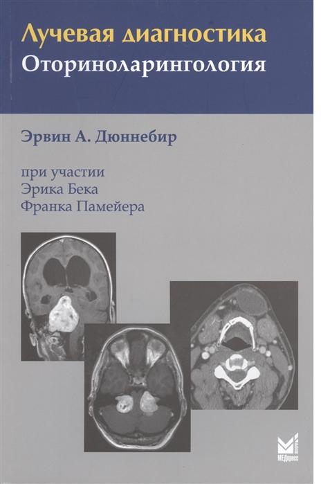 Дюннебир Э. Лучевая диагностика Оториноларингология