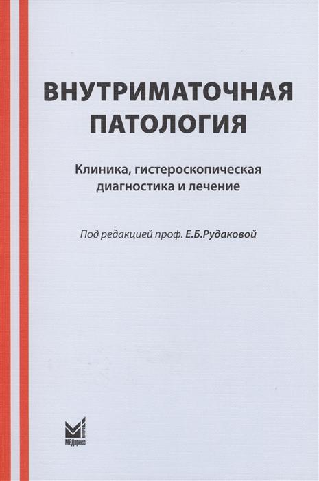 Рудакова Е., Куриленко Т., Давыдов В., Давыдов П. Внутриматочная патология Клиника гистероскопическая диагностика и лечение