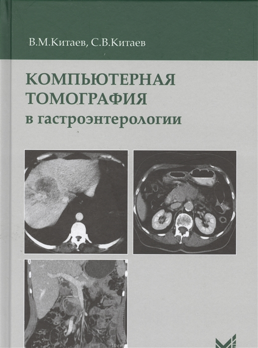 Китаев В., Китаев С. Компьютерная томография в гастроэнтерологии Руководство для врачей все цены