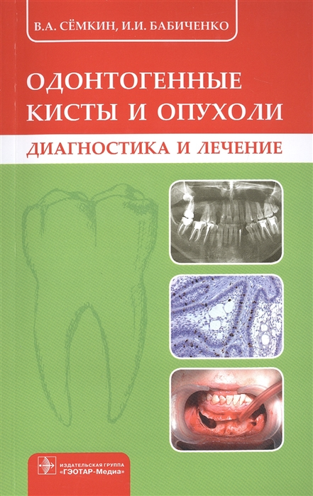цены на Семкин В., Бабиченко И. Одонтогенные кисты и опухоли Диагностика и лечение  в интернет-магазинах