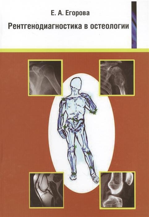 Рентгенодиагностика в остеологии Учебное пособие для врачей и студентов медицинских вузов