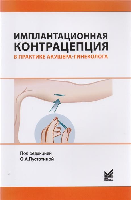 Пустотина О. (ред.) Имплантационная контрацепция в практике акушера-гинеколога