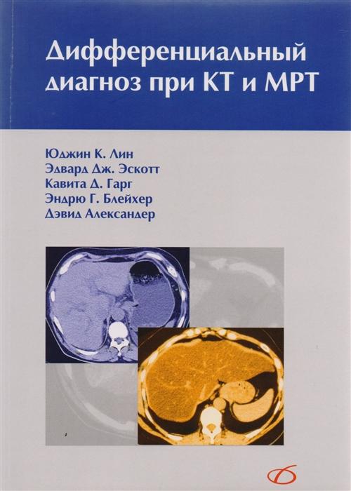 Фото - Лин Ю., Эскотт Э., Гарг К. и др. Дифференциальный диагноз при КТ и МРТ хили патриция м джекобсон эдвин дж дифференциальный диагноз внутренних болезней алгоритмический подход
