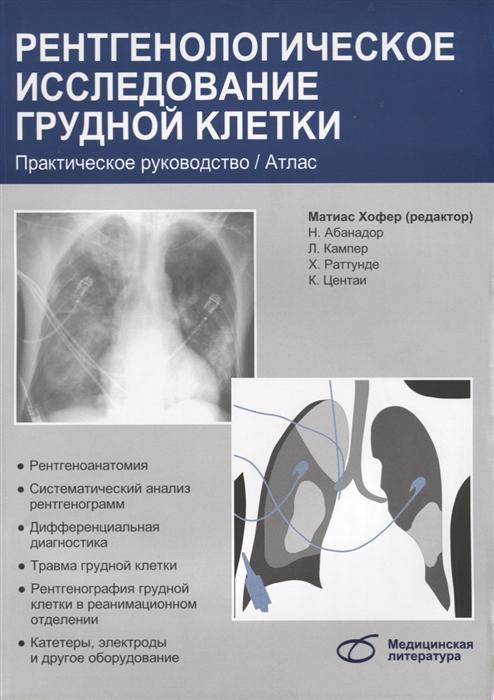 Хофер М Рентгенологическое исследование грудной клетки Практическое руководство Атлас