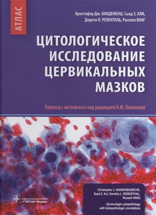 Ванденбуш К., Али С., Розенталь Д., Ванг Р. Цитологическое исследование цервикальных мазков Атлас цена