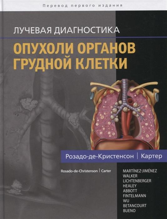 цена на Розадо-де-Кристенсон М., Картер Б. и др. Лучевая диагностика Опухоли органов грудной клетки