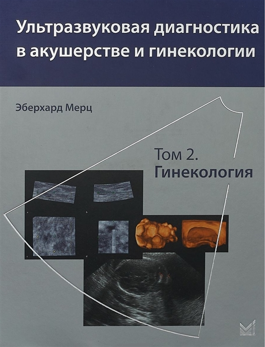 Мерц Э. Ультразвуковая диагностика в акушерстве и гинекологии Том 2 Гинекология к штайнер визуальная диагностика в акушерстве и неонатологии