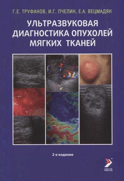 Труфанов Г., Пчелин И., Вецмадян Е. Ультразвуковая диагностика опухолей мягких тканей
