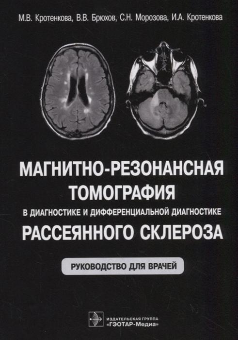 Магнитно-резонансная томография в диагностике и дифференциальной диагностике рассеянного склероза Руководство для врачей фото
