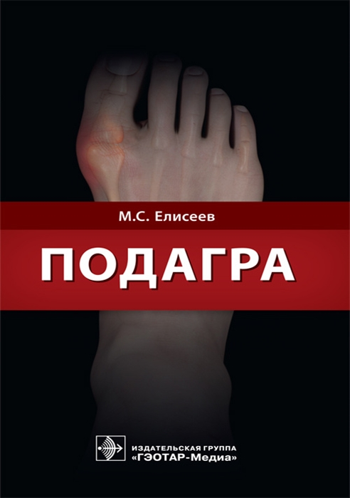 Елисеев М. Подагра