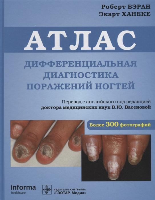 Бэран Р., Ханеке Э. Атлас Дифференциальная диагностика поражений ногтей