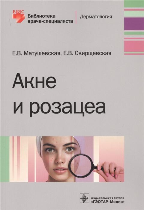 Матушевская Е., Свирщевская Е. Акне и розацеа лечение розацеа мази