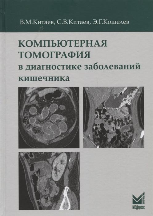 Китаев В., С., Кошелев Э. Компьютерная томография в диагностике заболеваний кишечника
