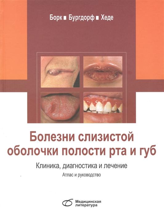 Борк К., Бургдорф В., Хеде Н. Болезни слизистой оболочки полости рта и губ Клиника диагностика и лечение Атлас и руководство недорого