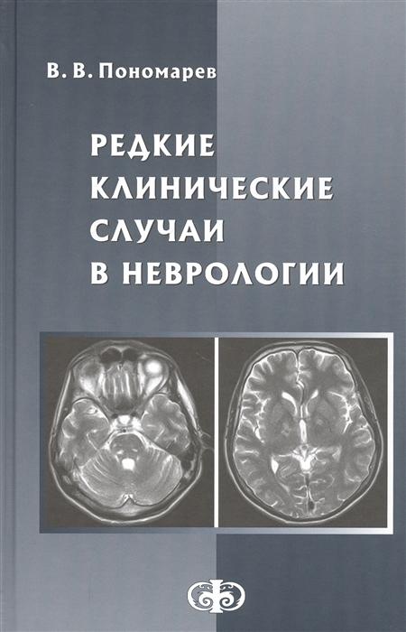 Пономарев В. Редкие клинические случаи в неврологии Руководство для врачей левин о васенина е ганькина о чимагомедова а клинические шкалы в неврологии