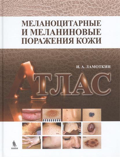 Ламоткин И. Меланоцитарные и меланиновые поражения кожи: учебное пособие. Атлас