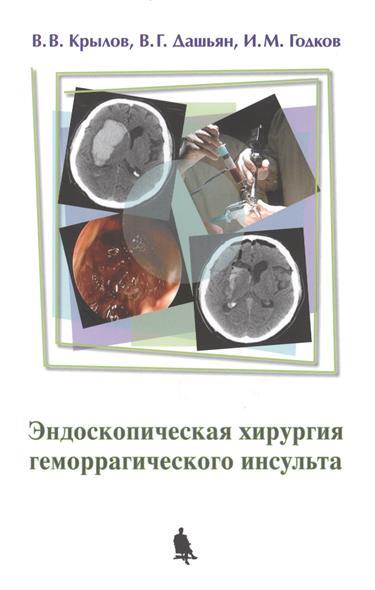 Эндоскопическая хирургия геморрагического инсульта