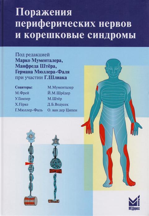 Мументалер М, Штёр М, Мюллер-Фаль Г. Поражения периферических нервов и корешковые синдромы
