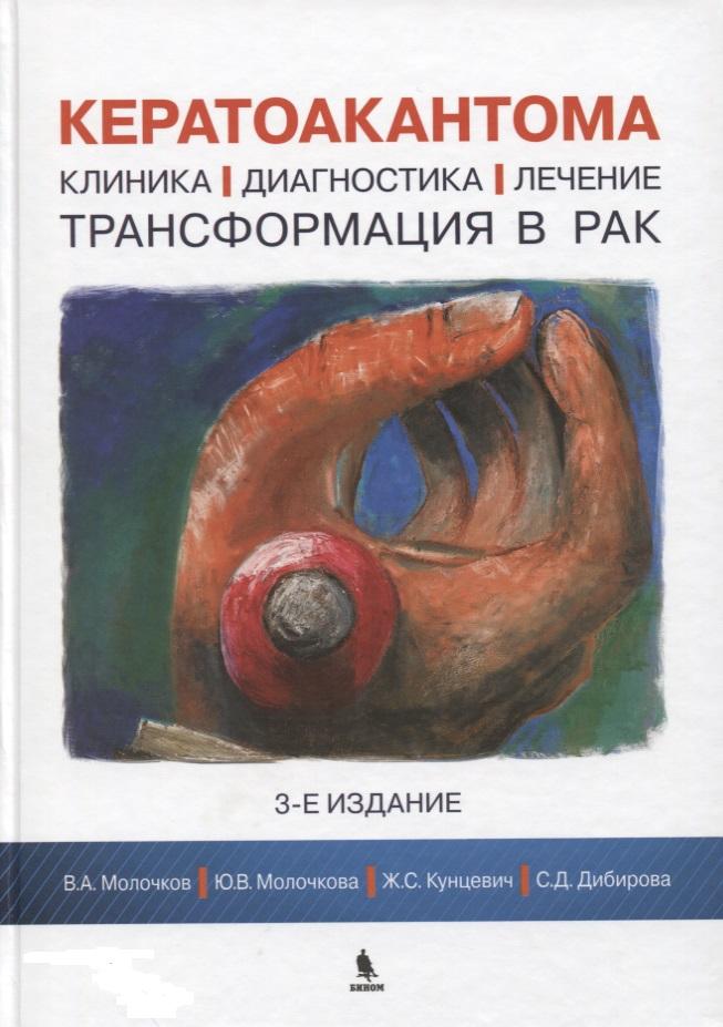 Молочков В., Молочкова Ю., Кунцевич Ж., Дибирова С. Кератоакантома. Клиника, диагностика, лечение, трансформация в рак агеенко а рак расшифровка злокачественности ранняя диагностика…