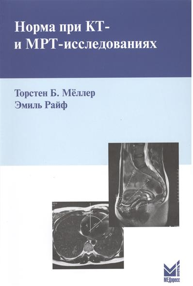 Меллер Т., Райф Э. Норма при КТ- и МРТ-исследованиях т б меллер норма при рентгенологических исследованиях