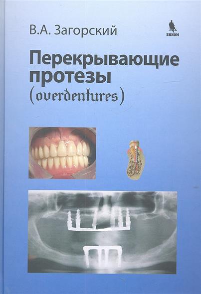 Загорский В. Перекрывающие протезы (overdentures) съ мные зубные протезы