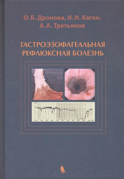 Дронова О., Каган И., Третьяков А. Гастроэзофагеальная рефлюксная болезнь. Анатомо-эндоскопические и клинико-инструментальные основы этиологии, патогенеза, диагностики и лечения
