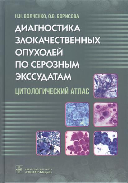 Диагностика злокачественных опухалей по серозным экссудатам