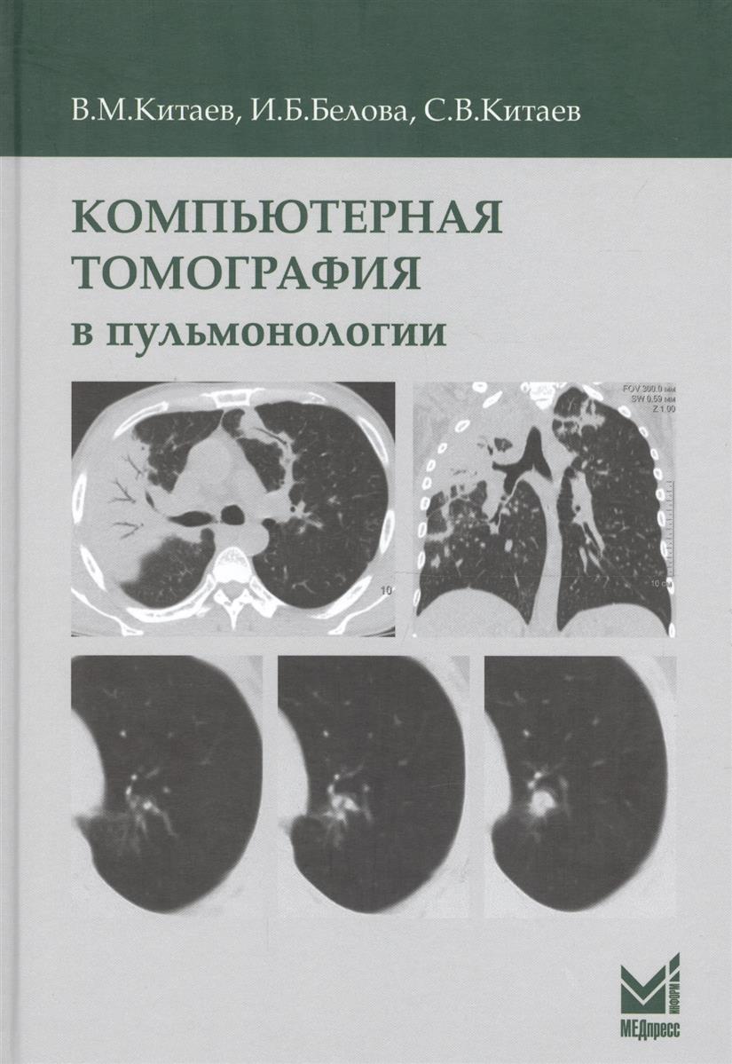 Китаев В., Белова И., Китаев С. Компьютерная томография в пульмонологии максим китаев мир без бога