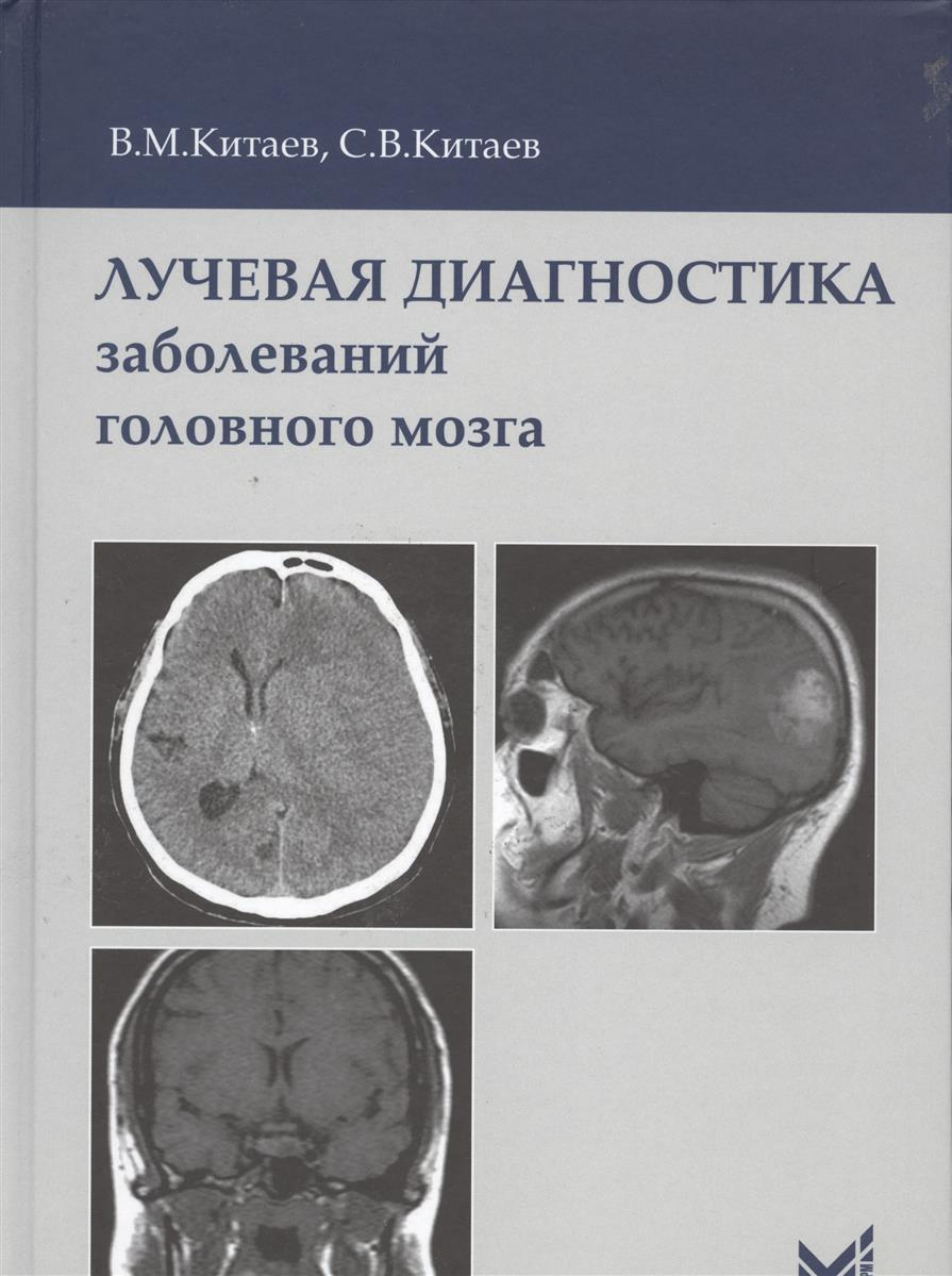 все цены на Китаев В., Китаев С. Лучевая диагностика заболеваний головного мозга онлайн