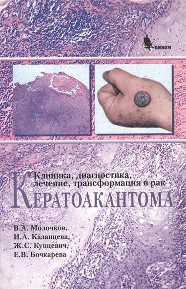 Кератоакантома Клиника диагностика лечение трансформация в рак