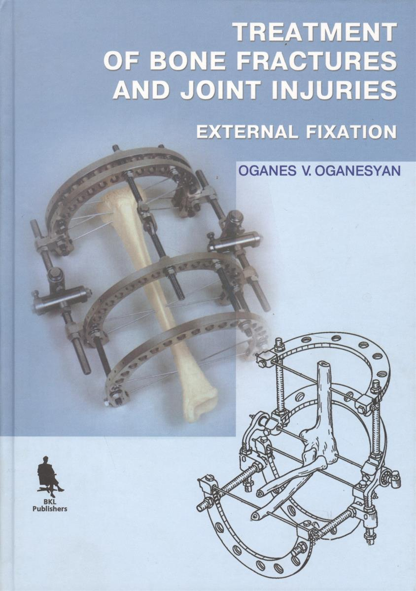 Oganesyan O. Treatment of Bone Fractures and Joint Injuries. External Fixation (книга на английском языке) prediction of bone length from bone fragments