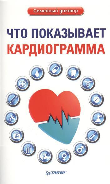 Что показывает кардиограмма