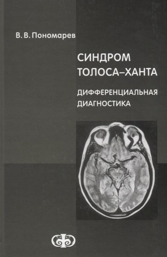 Синдром Толоса-Ханта. Дифференциальная диагностика