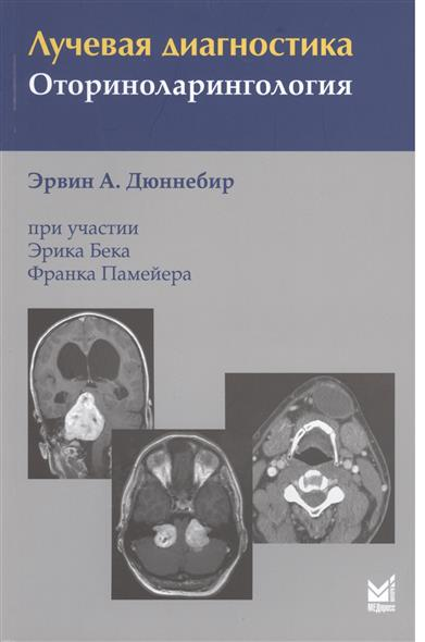 купить Дюннебир Э. Лучевая диагностика. Оториноларингология по цене 924 рублей