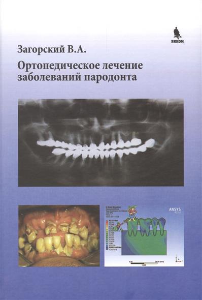 Загорский В. Ортопедическое лечение заболеваний пародонта