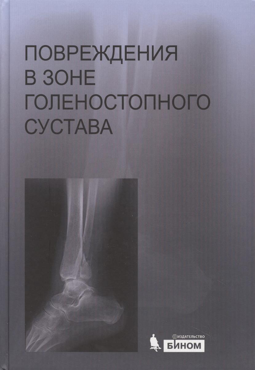 Повреждения в зоне голеностопного сустава (+CD)