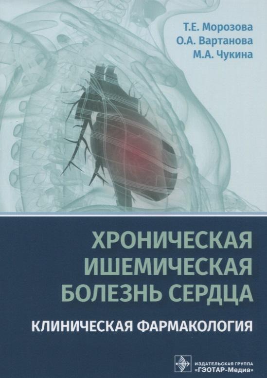 Хроническая ишемическая болезнь сердца. Клиническая фармакология