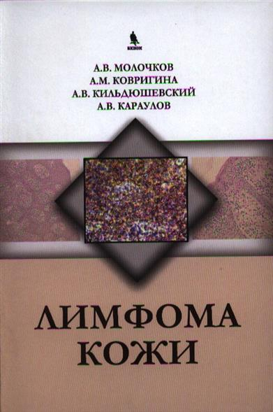 Молочков А., Ковригина А., и др. Лимфома кожи молочков в а эпителиальные опухоли кожи