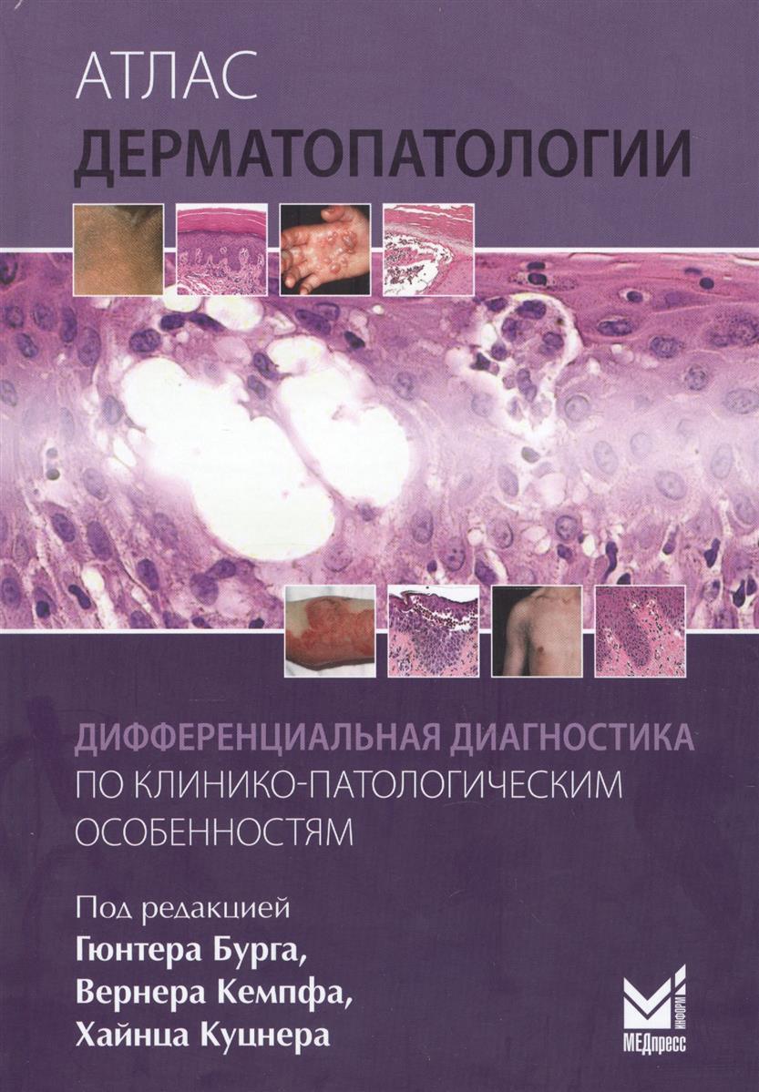 Бург Г., Кемпф В., Куцнер Х., ред. Атлас дерматопатологии. Дифференциальная диагностика по клинико-патологическим особенностям крис де бург ebern