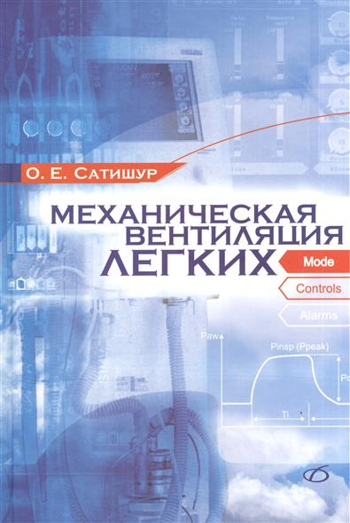 Сатишур О. Механическая вентиляция легких сатишур о механическая вентиляция легких