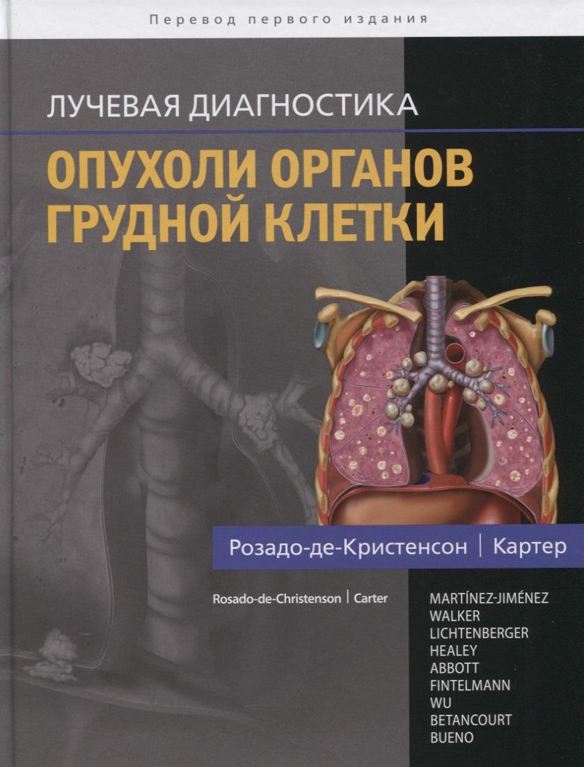 цены Розадо-де-Кристенсон М., Картер Б. и др. Лучевая диагностика. Опухоли органов грудной клетки ISBN: 9785918390931