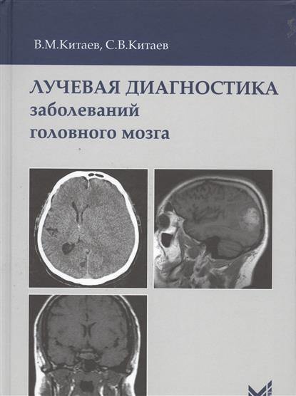 Китаев В., Китаев С. Лучевая диагностика заболеваний головного мозга максим китаев мир без бога