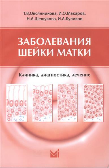 Заболевания шейки матки: Клиника, диагностика, лечение